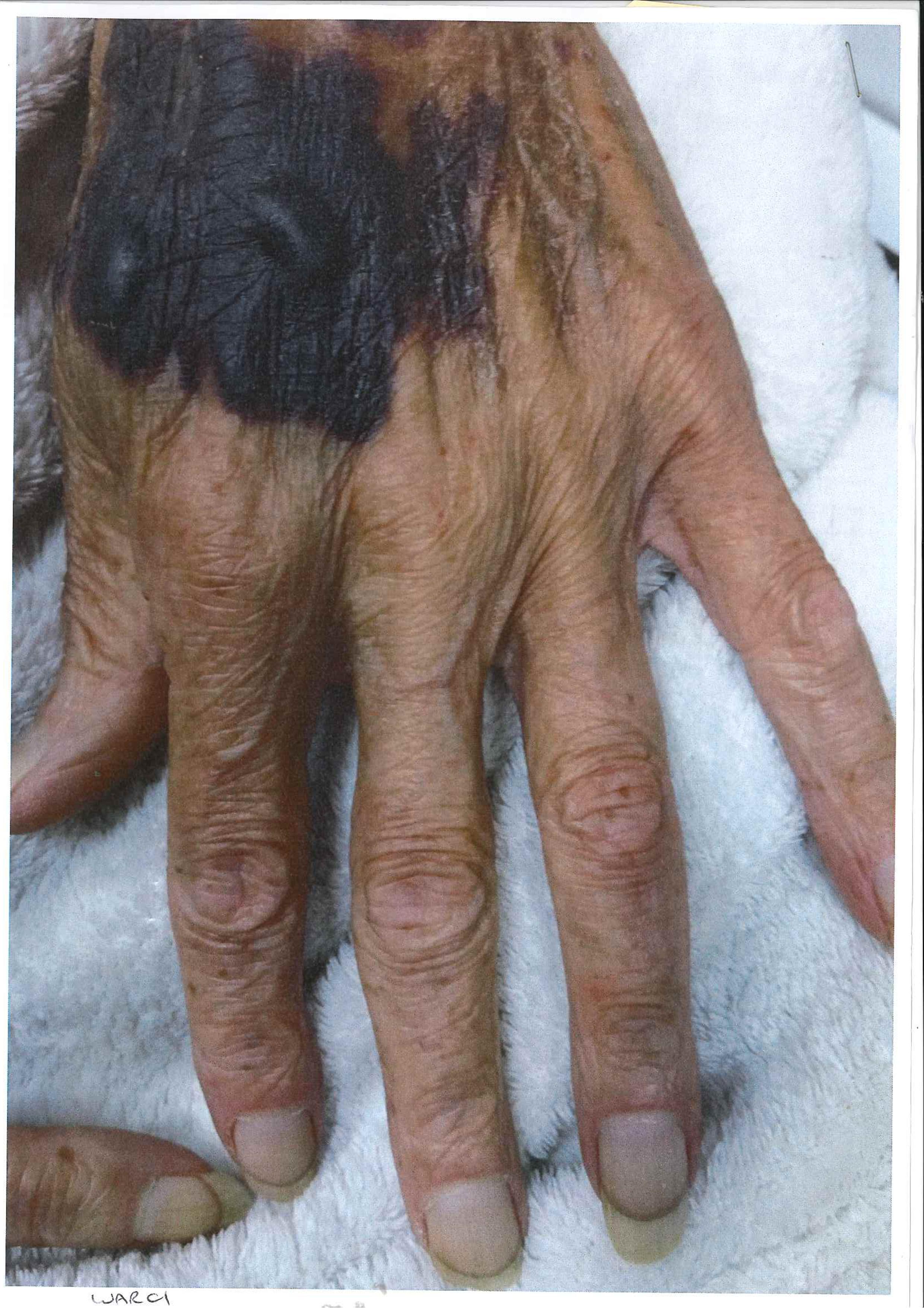 hand-injury1.jpg
